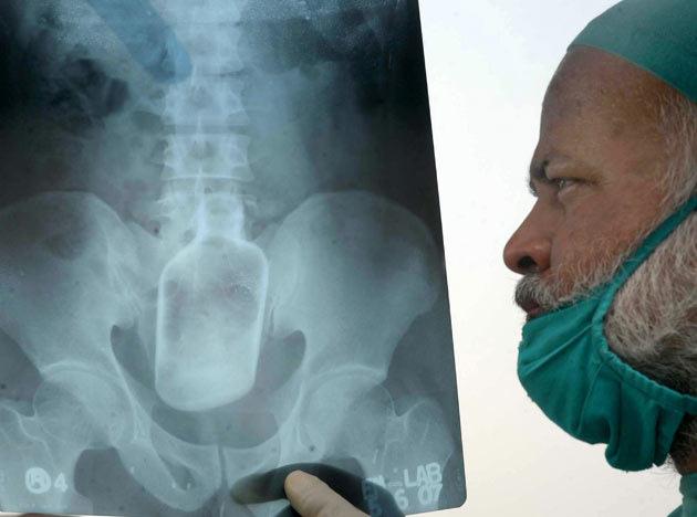 [Image: Shocking-X-rays-220911-08_044328.jpg]