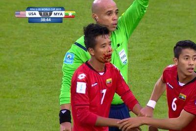Myanmar player ends up a bloody mess after taking elbow to the face
