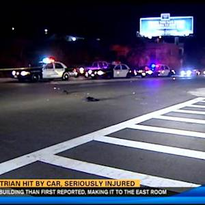 Pedestrian hit by car, seriously injured