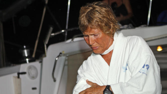 In this photo released by the Florida Keys News Bureau, endurance swimmer Diana Nyad shows Portuguese Man o' War jellyfish stings after she arrived in Key West, Fla., Sunday, Sept. 25, 2011, following a third unsuccessful attempt to swim from Havana to the Florida Keys. (AP Photo/Florida Keys News Bureau, Mike Marrero)