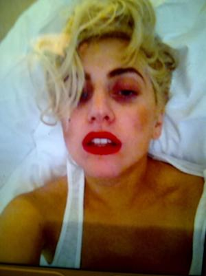 Lady Gaga seen in a photo posted on Twitter with what appears to be a black eye on June 12, 2012 -- Getty Images