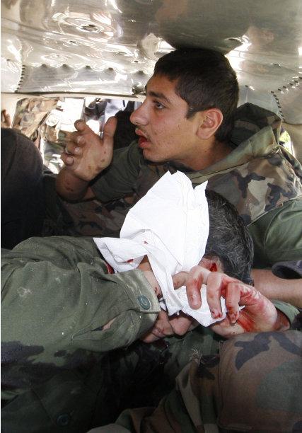 An injured  Syrian army soldier, who was hurt when  a roadside bomb hit his military truck, covers his wound with a bandage as he is helped by his comrade to a hospital, in Daraa city, southern Syria, on Wednesday May 9, 2012. The  explosion  targeted a Syrian military truck just seconds after a team of U.N. observers passed by. An Associated Press reporter who was traveling in the U.N. convoy said three bloodied Syrian soldiers were rushed from the scene after Wednesday's blast. The military truck had its windows blown out. The U.N. convoy was not hit. (AP Photo/Muzaffar Salman)