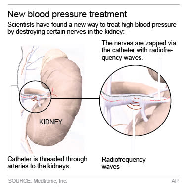 Graphic shows treatment for high-blood pressure