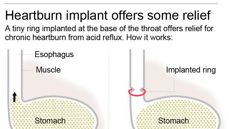 Implanted 'bracelet' helps treat chronic heartburn