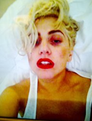 PIC: Lady Gaga Reveals Bruised Face After Onstage Concussion