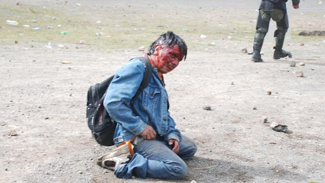 A wounded man sits on the ground during clashes with peasants protesting against the cost of electricity in Santa Catarina Ixtahuacan, west of Guatemala City on Thursday Oct. 4, 2012. At least two people have been killed and dozen others seriously wounded in the confrontation between protesters and security forces. (AP Photo)