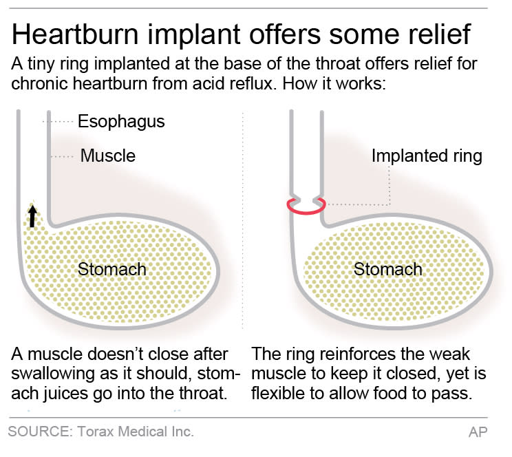 Graphic shows how heartburn device works