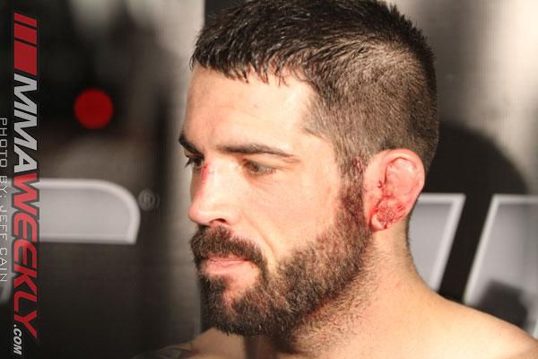 Matt Brown Injured, UFC on Fox 9 Bout with Carlos Condit Scrapped