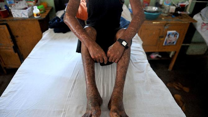 A patient sits on a bed at the Mawlamyaing Christian Leprosy Hospital in Mawlamyaing on March 13, 2014