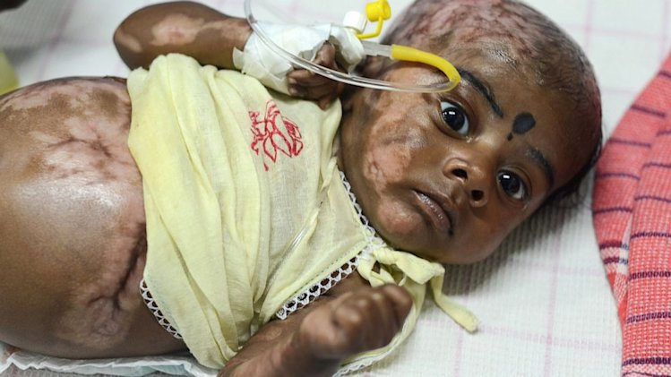 Doctors Investigate Indian Baby for Spontaneous Combustion
