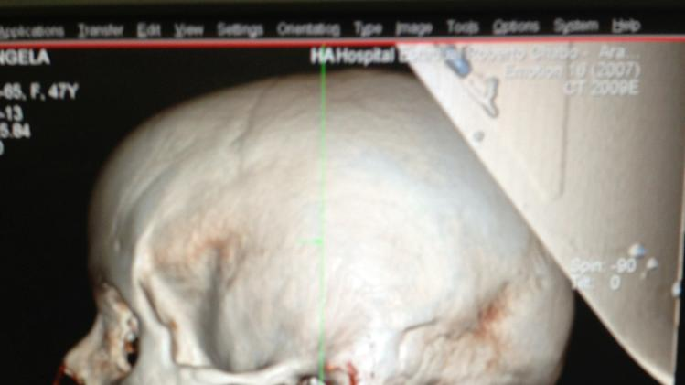... cervical spine. Officials said that the woman's husband was cleaning