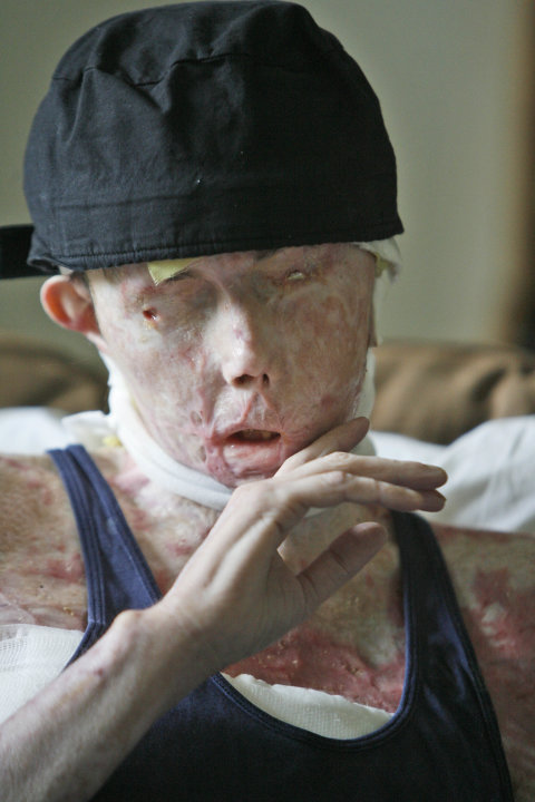 FILE - In this Aug. 20, 2008 file photo, Carmen Tarleton is interviewed in her home in Thetford, Vt. Tarleton, the Vermont woman whose face was disfigured in a lye attack received a face transplant. D