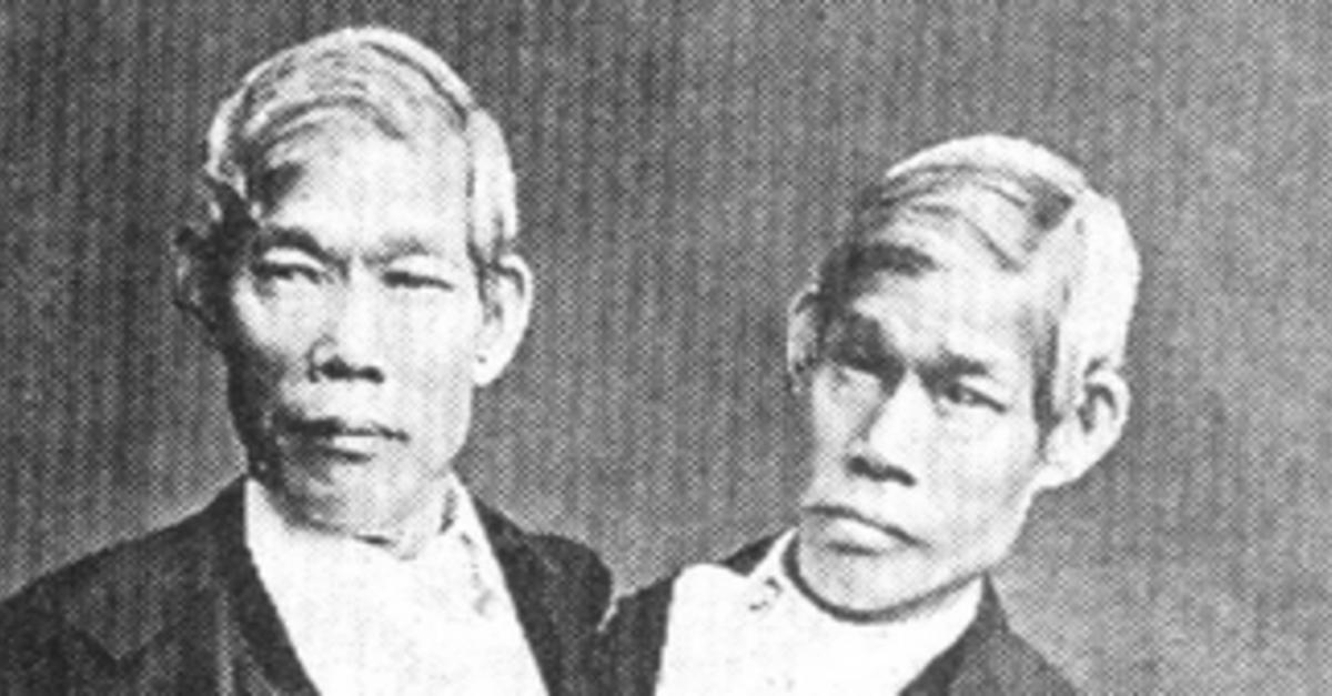 15 Unique Sets of Twins Who Defied The Universe
