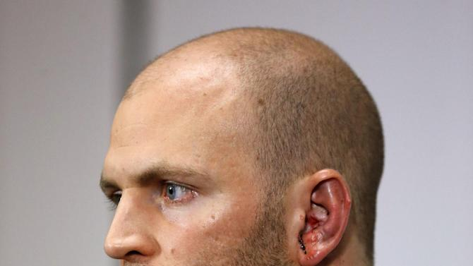 Toronto Blue Jays pitcher J.A. Happ speaks during a news conference prior to the Blue Jays' baseball game against the Tampa Bay Rays, Wednesday, May 8, 2013, in St. Petersburg, Fla. Happ was released Wednesday from a hospital, the day after he was hit on the head hit by a line drive from Tampa Bay Rays' Desmond Jennings. (AP Photo/Mike Carlson)