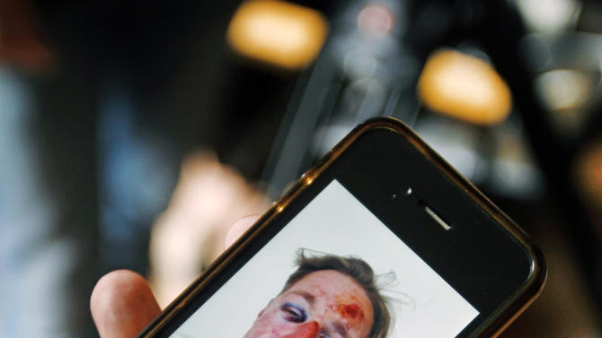 Wilfred de Bruijn, a Dutch citizen who lives and works as a librarian in Paris, France, shows a photo of his face shot by his friend after he was beaten, during an interview with The Associated Press at his apartment in Paris, Wednesday, April 10, 2013. de Bruijn was beaten unconscious near his home early Sunday morning in central Paris, sustaining 5 fractures in his head and face, abrasions and a lost tooth. After posting a photo of his wounds on Facebook, the image went viral and de Bruijn has become a national cause celebre of the pro-gay campaign. (AP Photo/Remy de la Mauviniere)