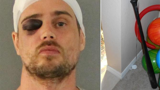 Tables Turned on Burglar Who Gets Beaten With His Own Baseball Bat: Cops