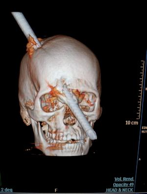 This tomography scan released Thursday, Aug. 16, 2012 by the Miguel Couto hospital, show the skull of 24-year-old construction worker Eduardo Leite pierced by a metal bar in Rio de Janeiro, Brazil. Doctors say Leite survived after a 6-foot metal bar fell from above him and pierced his head. Luiz Essinger of Rio de Janeiro's Miguel Couto Hospital Friday told the Globo TV network that doctor's successfully withdrew the iron bar during a five-hour-long surgery. (AP Photo/Miguel Couto Hospital)