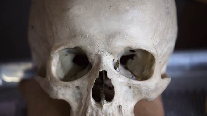 An anatomical specimen is displayed at the City of New York Office of Chief Medical Examiner where anthropologists routinely work to reveal the persons behind unclaimed and unidentified remains, Tuesday, August 14, 2012, in New York. The office is undertaking an ambitious effort to identify the nameless dead in the city's potter's field, seeking to capitalize on the expertise that it gained over the last decade identifying remains from the World Trade Center attack. (AP Photo/John Minchillo)