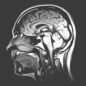 Could a Drug Prevent Brain Aging?
