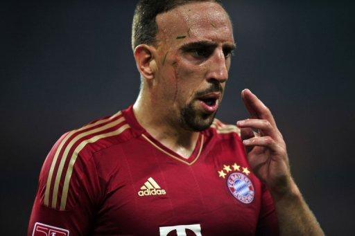 Franck Ribery is out of Bayern Munich's first game with a fever