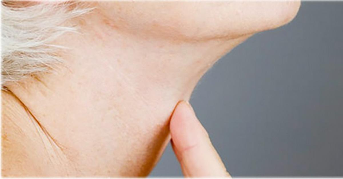 """MD Advice: Simple Way to Tighten A """"Loose Neck"""""""