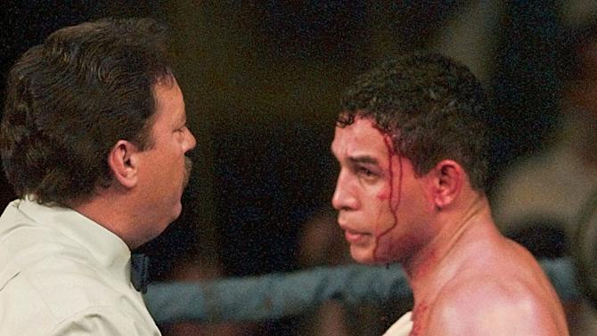 """FILE - In this Jan. 16, 1996 file photo, referee Jorge Alfonso, left, looks over a cut on the forehead of IBC Welterweight boxing champ Hector """"Macho"""" Camacho during the second round of his title bout with Sal Lopez from New Jersey, in Ft. Lauderdale, Fla. Camacho, a boxer known for skill and flamboyance in the ring, as well as for a messy personal life and run-ins with the police, has died, Saturday, Nov. 24, 2012, after being taken off life support. He was 50.  (AP Photo/Hans Deryk, File)"""