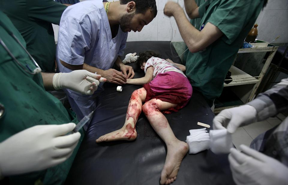 Medics treat Fatima Qassem, 6, whose legs were badly injured when government forces fired on her family's car, at a hospital in Aleppo, Syria, Tuesday, Sept. 11, 2012. (AP Photo/Muhammed Muheisen)