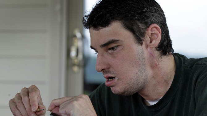 In this photo taken July 25, 2013 Richard Norris ties a fishing fly at his home in Hillsville, Va. The man whose face was disfigured by a gunshot spent 15 years as a recluse, but now the 37-year-old is doing things he never would have before. (AP Photo/Chuck Burton)