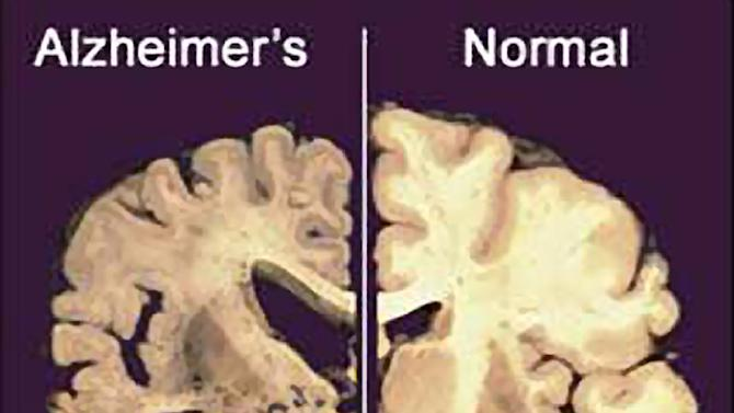 "FILE - This undated file image provided by Merck & Co., shows a cross section of a normal brain, right, and one of a brain damaged by advanced Alzheimer's disease. A dramatic shift is beginning in the disappointing struggle to find something to slow the damage of Alzheimer's disease: The first U.S. experiments with ""brain pacemakers"" for Alzheimer's are getting under way. Scientists are looking beyond drugs to implants in the hunt for much-needed new treatments. (AP Photo/Merck & Co., File)"