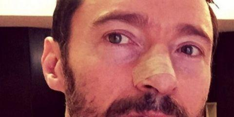 Hugh Jackman Shares a Very Personal Warning to His Fans