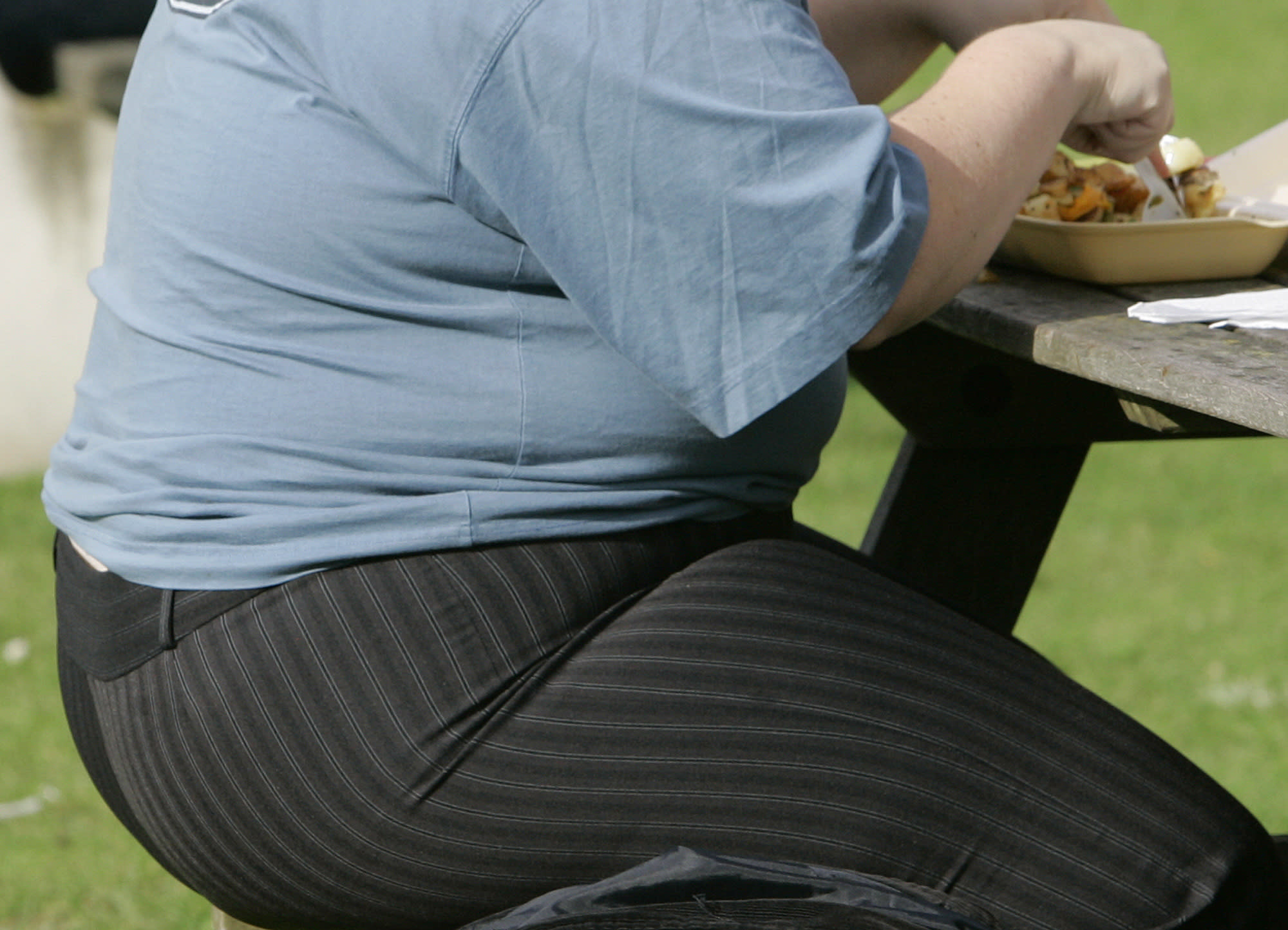 European court rules obesity can be a disability
