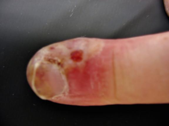 Blister Finger Infection, herpes