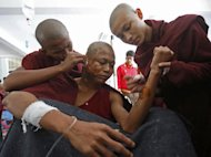 A seriously burnt Buddhist monk is seen receiving treatment at a hospital after police crackdown on a copper mine protest on villagers and monks protesting against the Chinese-backed mine, in Monywa, northern Myanmar, on November 29, 2012. The govt on Saturday dismissed an independent report that alleged security forces used white phosphorus in the crackdown which left dozens of people injured