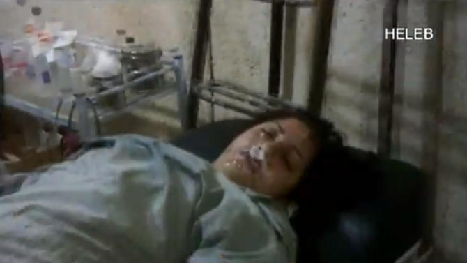 In this screen shot from amateur video provided by Ronahi TV, a woman foams at the mouth while lying on a stretcher at a hospital in Syria. The video is consistent with AP reporting of an attack in the Sheikh Maqsoud neighborhood in Aleppo on April 13, although it was not known if the symptoms resembled those triggered by a chemical weapons attack. A defense analyst who viewed the video of the victims lying on stretchers after the attack said that, while it was impossible to verify that a nerve agent caused their symptoms, they appeared to be the result of something other than traditional weaponry. (AP Photo/Ronahi TV) RONAHI TV IS A KURDISH NETWORK, IT IS NOT A RECOGNISED NEWS GATHERING ORGANISATION. THE ASSOCIATED PRESS CANNOT INDEPENDENTLY VERIFY THE CONTENT, DATE, LOCATION OR AUTHENTICITY OF THIS MATERIAL
