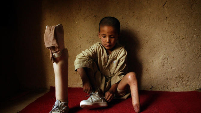 """In this Aug. 14, 2004 photo, Mohammaed Mahdi, who lost his foot in a mine explosion, waits for a Red Cross doctor in his home in Kabul, Afghanistan.  In Afghanistan, Associated Press photographer Emilio Morenatti had visited a rehabilitation center run by the Red Cross in Kabul that was considered one of the best in the country and was one of the few that provided prostheses to patients, including children, who had been blown up by forgotten mines in rural areas. Morenatti's world changed on Aug. 11, 2009 when during his embed in southern Afghanistan with the U.S. military, which was to have been his last patrol before going home, the eight-wheel armored Stryker vehicle in which he was traveling with U.S. soldiers hit a roadside bomb and flipped over, knocking him unconscious. Morenatti lost his leg below the knee in the bomb blast. """"I never stop thinking about those Afghan patients and how they were facing their rehabilitation process even in that calamitous center,"""" writes Morenatti. (AP Photo/Emilio Morenatti)"""