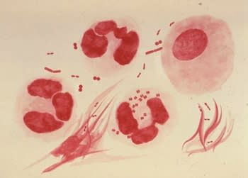 Common STD Grows Resistant to Treatment in North America