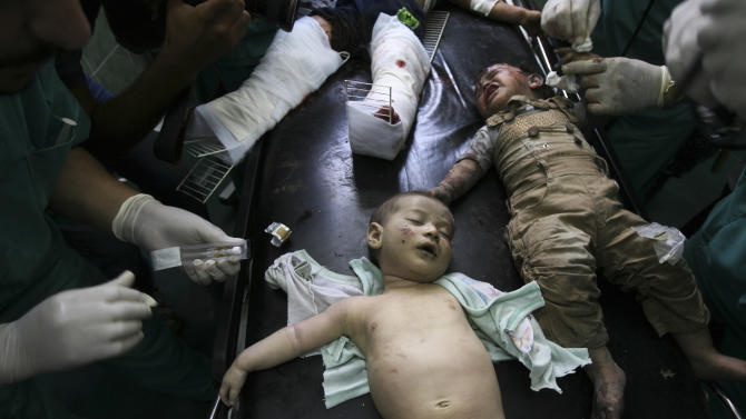 Palestinian children wounded in Israeli shelling are treated in a hospital in Rafah in the southern Gaza Strip, Friday, Aug. 1, 2014. (AP Photo/Eyad Baba)