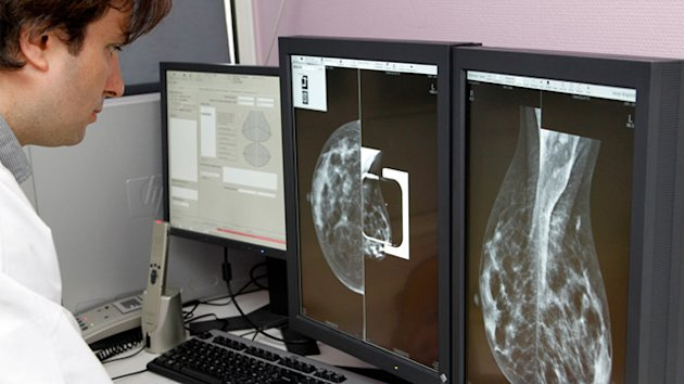 Four Distinct, Genetic Types of Breast Cancer, Study Finds (ABC News)