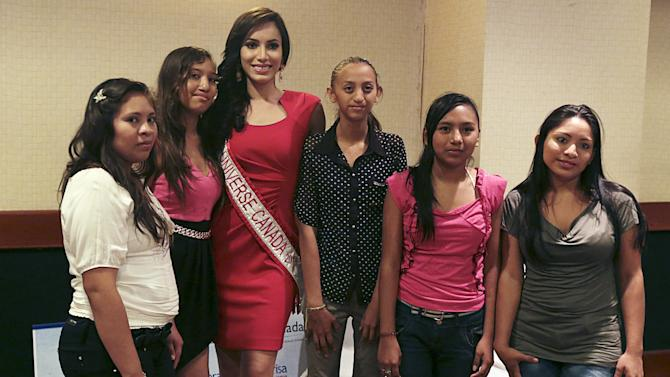 Miss Universe Canada 2015 Nunez Valdez poses for pictures with children who have had cleft lip or palate operations after a news conference in Managua, Nicaragua