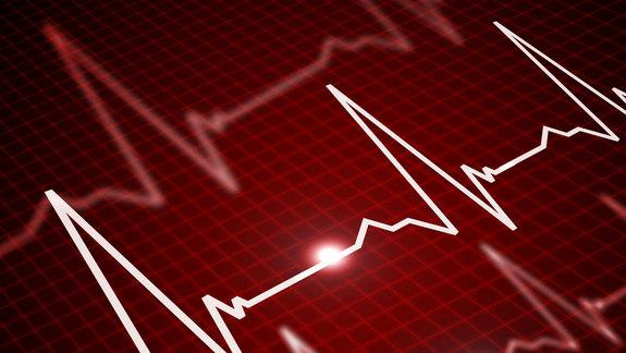 Death of Spouse Increases Risk for Heart Attack, Stroke