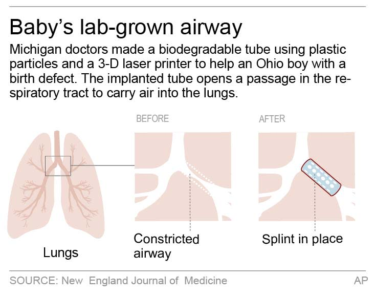 Diagram shows a plastic tube used to open a passage of airway in the respiratory tract