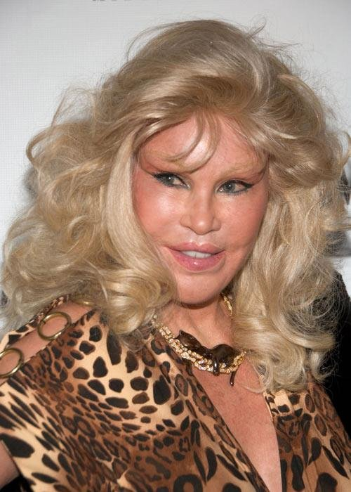 Jocelyn_Wildenstein.jpg-3 …