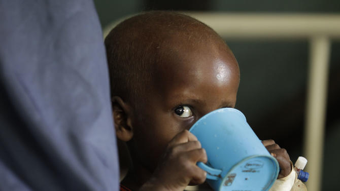 """A young Somali boy being treated for malnutrition drinks therapeutic milk at a Doctors Without Borders hospital in Dagahaley Camp, outside Dadaab, Kenya, Monday, July 11, 2011. U.N. refugee chief Antonio Guterres said Sunday that drought-ridden Somalia is the """"worst humanitarian disaster"""" in the world, after meeting with refugees who endured unspeakable hardship to reach the world's largest refugee camp in Dadaab, Kenya. (AP Photo/Rebecca Blackwell)"""