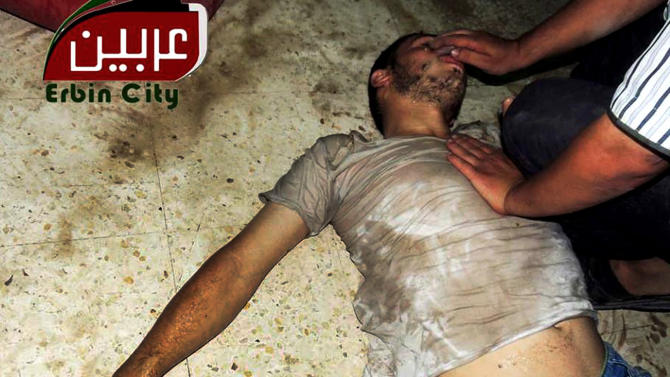 "This citizen journalism image provided by the Local Committee of Arbeen which has been authenticated based on its contents and other AP reporting, shows a Syrian man receiving treatment, in Arbeen town, Damascus, Syria, Wednesday, Aug. 21, 2013. Syrian regime forces fired intense artillery and rocket barrages Wednesday on the eastern suburbs of the capital Damascus, in what two pro-opposition groups claimed was a ""poisonous gas"" attack that killed dozens of people. (AP Photo/Local Committee of Arbeen)"