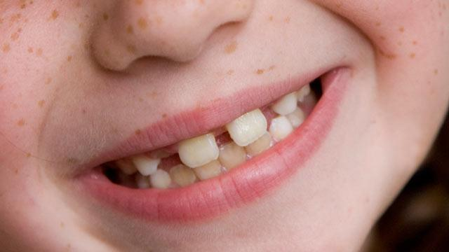 Dental Plans: Paying More For Less?