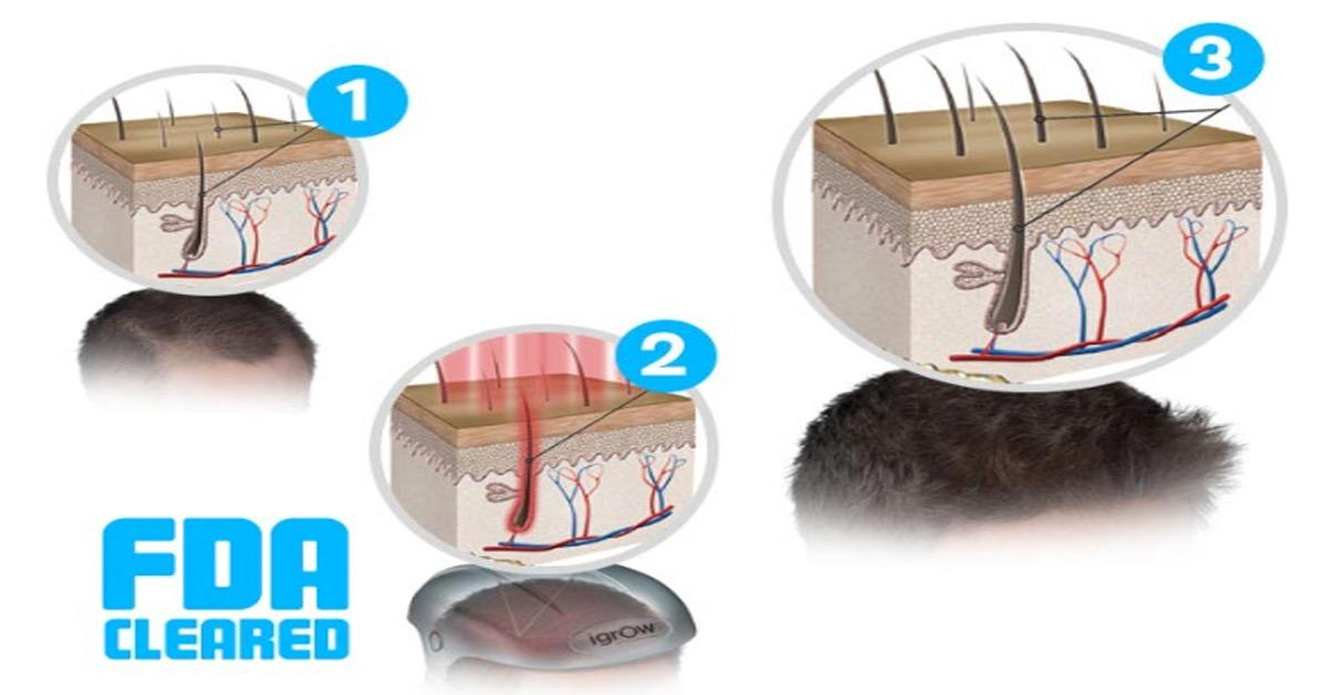 Grow Your Own Hair Back, FDA Cleared Solution