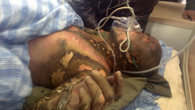 FILE - In this file photo taken March 14, 2012 and released March 15, 2012 by Freetibet.org, Tibetan Jamyang Palden is seen at a hospital after he attempted to set himself on fire in Tongren, a monastery town in Qinghai province, western China. Dozens of Tibetans have set themselves on fire over the past year to protest Chinese rule, sometimes drinking kerosene to make the flames explode from within, in one of the biggest waves of political self-immolations in recent history. (AP Photo/Freetibet.org, File)