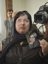In this picture taken on 2008, Ameneh Bahrami, shows her picture before being blinded by a suitor who threw acid on her face, at the court in Tehran, Iran. Bahrami on Sunday July 31 2011, pardoned her attacker at the last minute, sparing him from being blinded by acid as retribution. Majid Movahedi poured acid on Bahrami's face and blinded her in 2004 for rejecting his marriage proposal. A 2008 Iranian court order allowed Bahrami to pour the corrosive chemical in Movahedi eyes as retribution. (AP Photo/Golara Sajjadian)