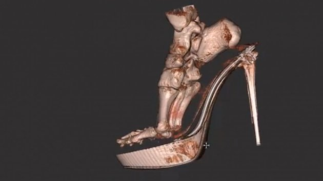 3-D Scan Reveals Foot Damage by High Heels (ABC News)