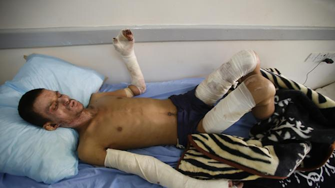 A man injured in a recent Saudi-led airstrike lies on a hospital bed to receive treatment in Sanaa, Yemen, Sunday, April 26, 2015. Aircraft from the Saudi-led coalition battling Shiite rebels in Yemen struck targets in several cities on Sunday, including the capital, security officials said, as fighting raged across the country. (AP Photo/Hani Mohammed)